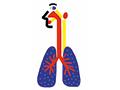Симптомы болезни, вызываемой вирусом БВРС