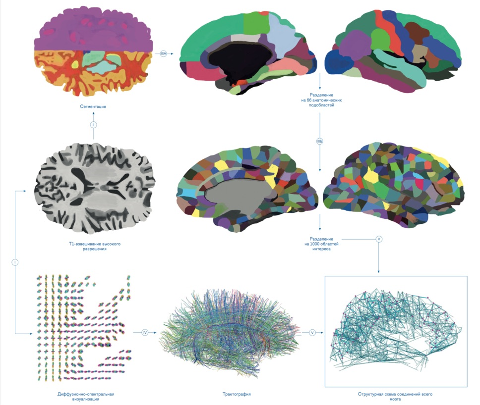 рис. 01  Схема исследования мозга наоснове магнитно-резонансных изображений