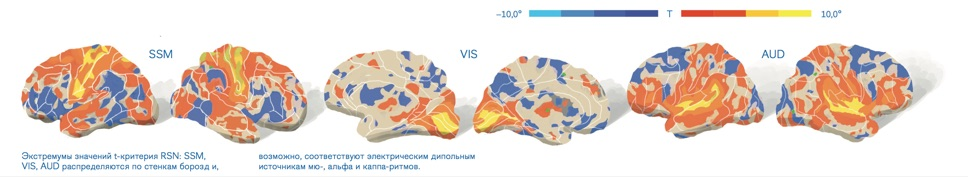 Рис. 03 Топография экстремумов сенсорных и моторных RSN относительно борозд мозга