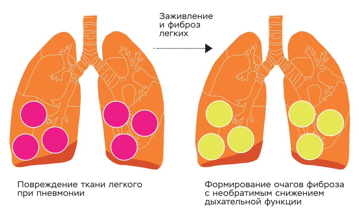 Процессы заживления могут иметь два исхода — регенерацию с полным восстановлением структуры до исходного состояния или фиброз, то есть формирование соединительнотканной «заплаты», или рубца. У большинства пациентов, переболевших вирусной пневмонией из-за COVID-19, фиброза не случится, но можно ожидать и достаточно большого количества больных, у которых функция легких после коронавирусной инфекции будет снижена.