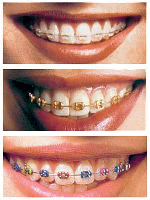 На расположение зубов влияет множество различных факторов, в их числе и длительность грудного вскармливания...