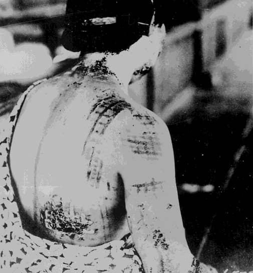 Световое излучение оставляло на коже людей рисунок одежды, а на стенах домов — силуэты человеческих тел