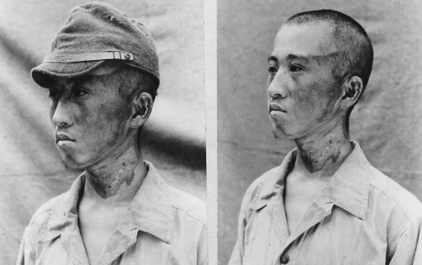 Спустя несколько дней после взрыва у выживших начали появляться первые симптомы лучевой болезни, которую японские медики не смогли сразу распознать