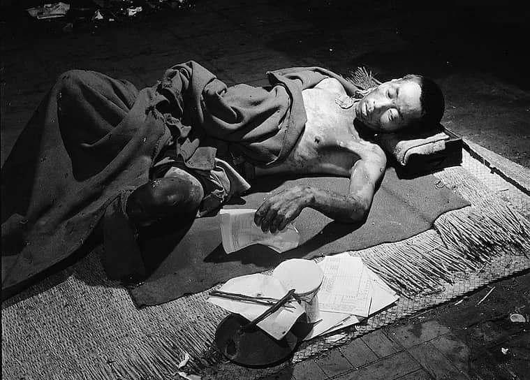 В результате взрыва мгновенно было убито около 80 тыс. человек, ранено 40 тыс., еще около 12 тыс. японцев пропало без вести