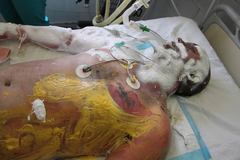 Все госпитализированные имели ожоговые травмы. Из 137 доставленных в больницы выжили только 82 пациента