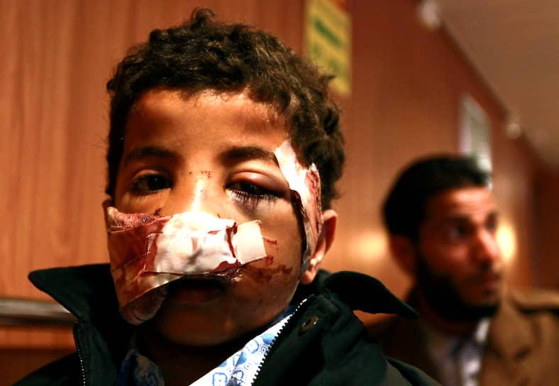 Убийства детей в Сирии совершаются разными способами. Многие были зарезаны в ходе массовых убийств в таких районах как аль-Хуля и Карм аз-Зайтун в провинции Хомс. По некоторым данным, около тысячи детей погибли во время газовой атаки 21 августа 2013 года в Гуте