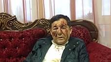Лидер дагестанских справороссов избит в Махачакале