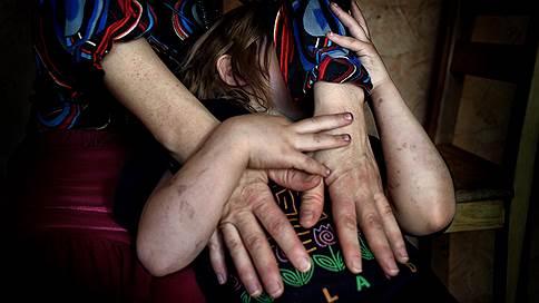 Частный случай насилия  / Как в Вологде борются за отдельно взятую семью