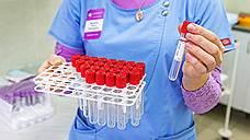 UNAIDS недовольна темпами борьбы с ВИЧ
