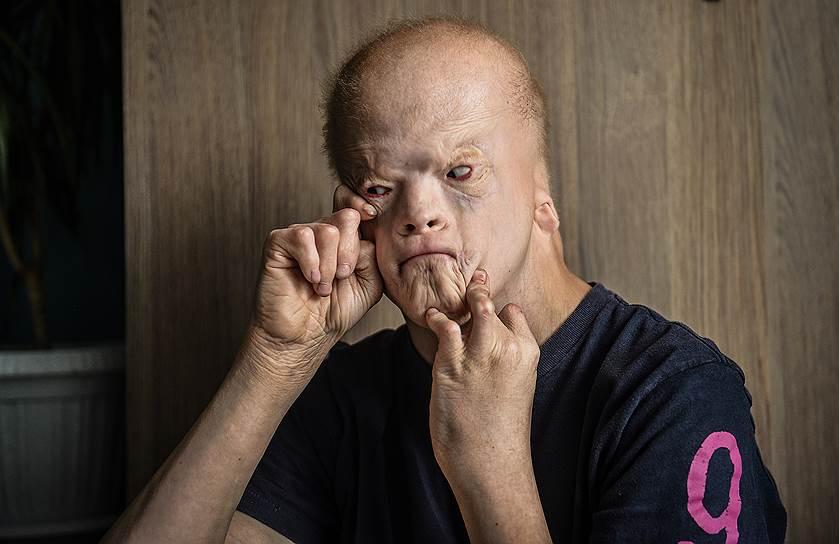 Из-за несмыкания челюстей Леша пока не может говорить, но вполне сносно изъясняется на языке жестов