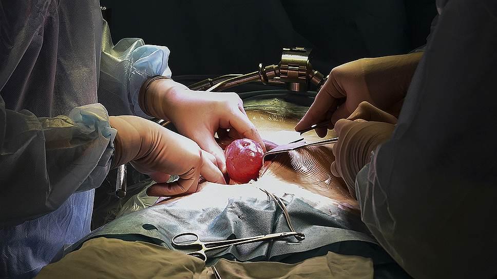 Врачи во время проведения операции по пересадки почки в Институте Склифосовского
