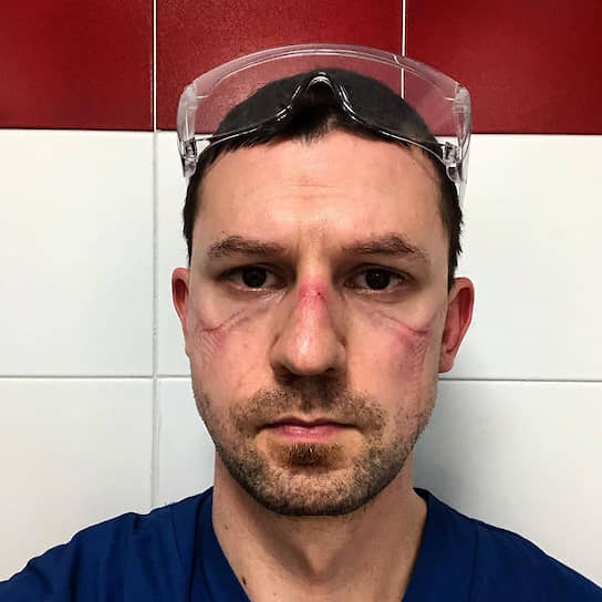 35-летний врач <b>Никола Сгарби</b> работает в отделении интенсивной терапии больницы в итальянском городе Модена (регион Эмилия-Романья). Это селфи он сделал после 13 часов работы в реанимации в защитном костюме и маске