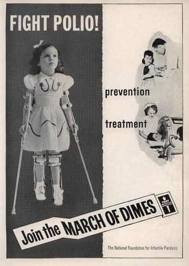 Иногда скоб для ног было недостаточно – тогда жертвам полиомиелита требовались костыли