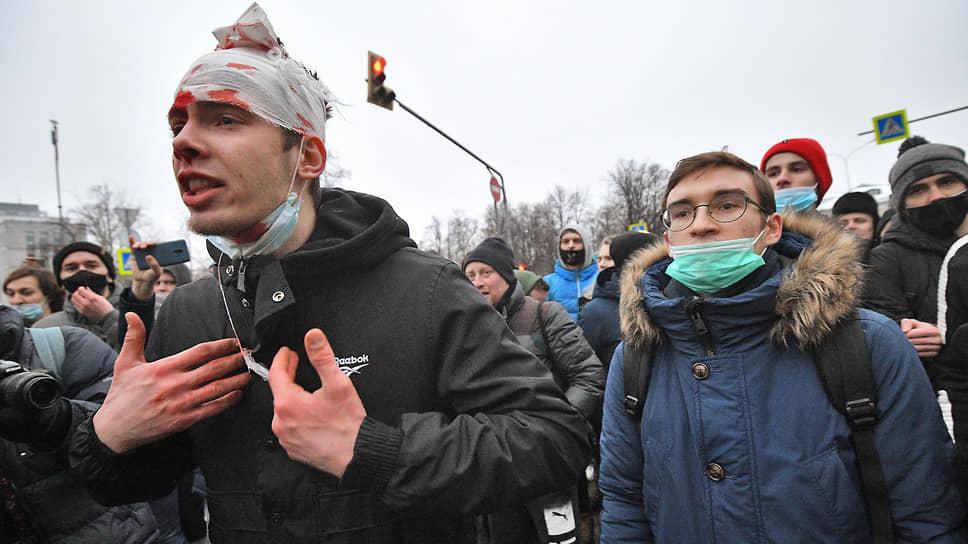 Участник со следами побоев на лице во время митинга