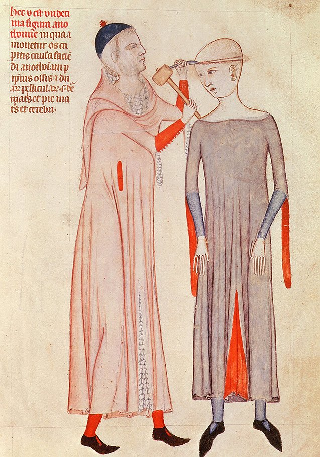 Средневековые доктора выбивали дурь из пациентов с помощью молотка. Их коллеги в ХХ веке делали то же самое