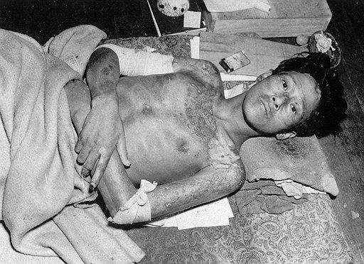 На этой фотографии – японец, умирающий от лучевой болезни, вызванной американской атомной бомбардировкой. Сегодня у облучившихся японцев был бы шанс спастись