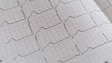 Надежность ЭКГ-дактилоскопии возросла до 99,5%