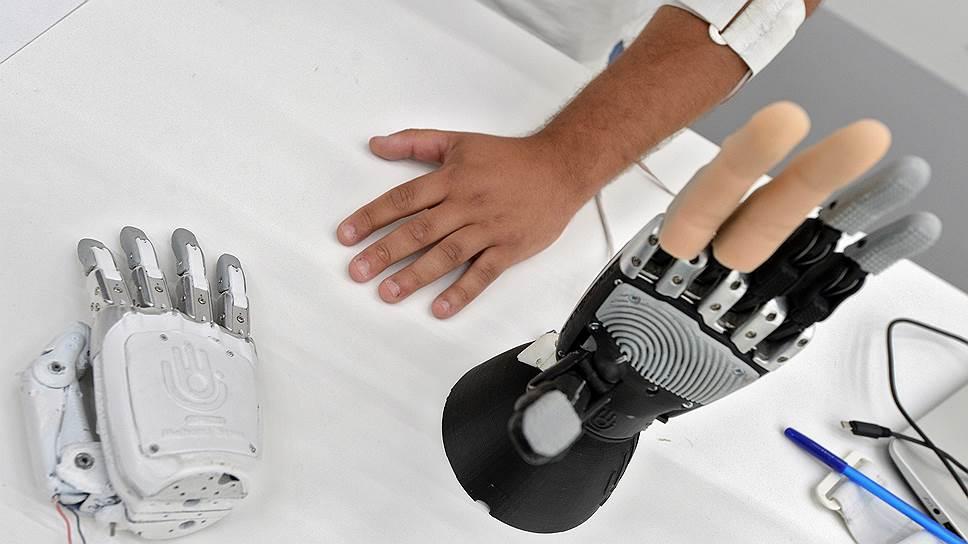 Как человек сживается с бионическими протезами рук