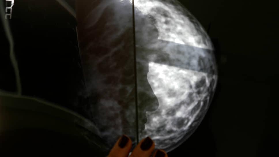 До распространенной опухоли молочной железы можно было и не доводить