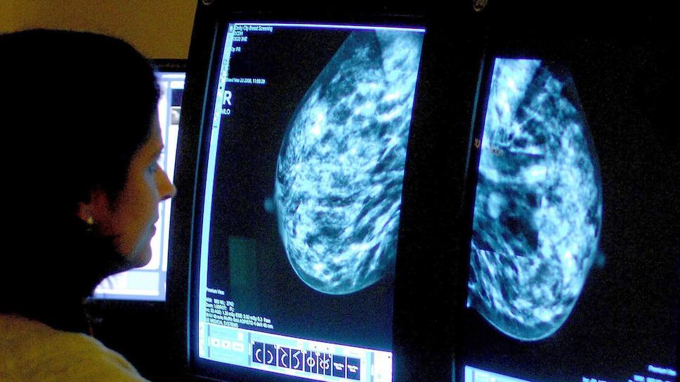 Скрининг как главный способ борьбы со злокачественными заболеваниями