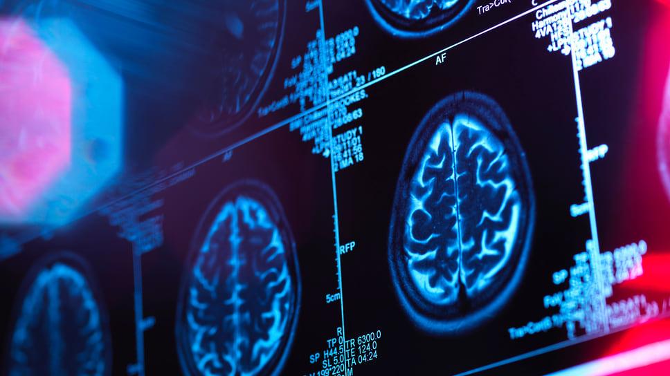Нейросеть научили выявлять опухоли мозга