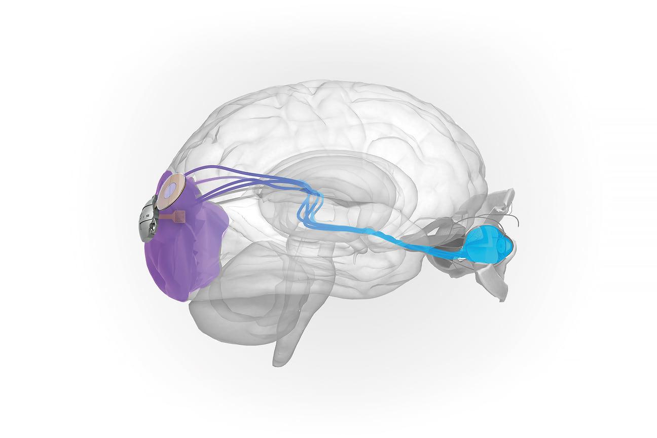 Имплант для вживления в кору головного мозга ELVIS