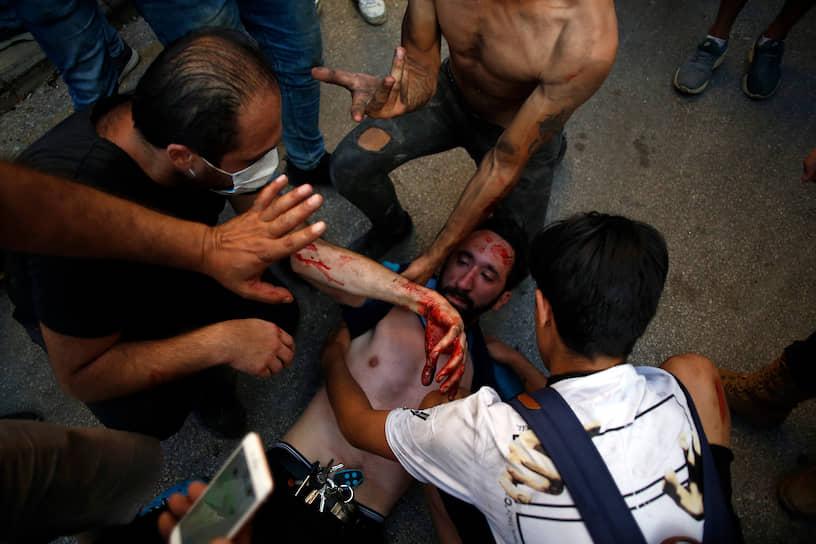 Пострадавших во время беспорядков отправили в больницы, которые сейчас и так переполнены раненными при взрыве в порту