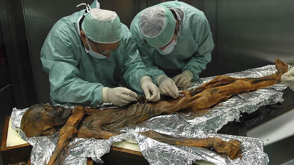 Чтобы найти желудок мумии Эци, ученые применили методы компьютерной томографии