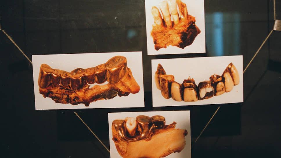 Фрагменты челюстей и зубов Адольфа Гитлера были показаны на выставке «Агония Третьего рейха: Возмездие» в 2000 году
