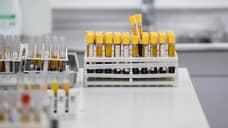 В Свердловской области зафиксирован антирекорд по смертности и заболеваемости коронавирусом