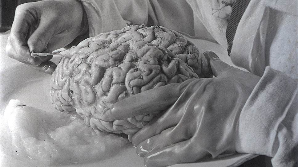 Даже разобравшись с премудростями получения тонких срезов, сотрудники Института мозга не смогли выполнить мудреную задачу, поставленную партией
